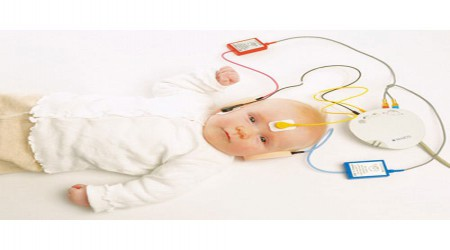 Brainstem Evoked Response Audiometry by Claritone Hearing Aid Center