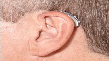 BTE Hearing Aids by Unicare Speech Hearing Clinic