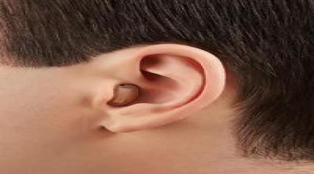IIC Sirion 2 Invisible Siemens Hearing Aid by Shrobonee Hearing Aid Center