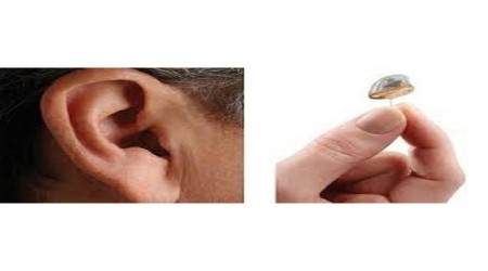 Siemens IIC Hearing Aid by Supertone Hearing Solution