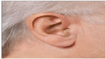 Siemens Intuis Cic Hearing Aid by Hearing Aid Voice Solution