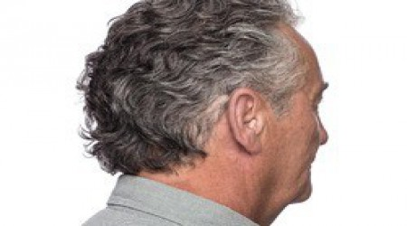 Widex Unique 440 CIC Hearing Aids by Shrobonee Hearing Aid Center