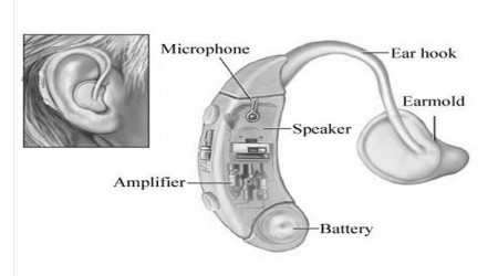 Behind The Ear Aids by Hearing Aids Centre