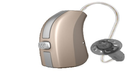 Widex Beyond Hearing Aid , B110 F2 RIC BTE by Shri Ganpati Sales