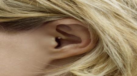 Siemens Intuis 2 Invisible Hearing Aid by Shrobonee