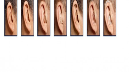 Completely In The Canal Hearing Aids by Star Speech And Hearing Clinic