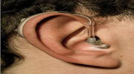 Behind The Ear Analog Hearing Aid 793u Resound by Shrobonee Hearing Aid Center